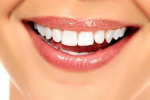 Soins esthétique dentaire Soins Esthétiques   Couronne dentaire et Blanchiment dentaire